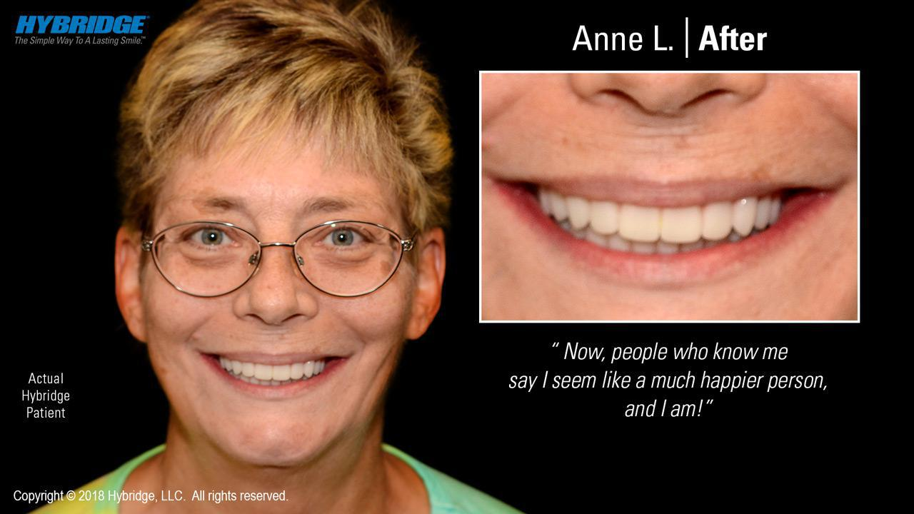 Anne L. After