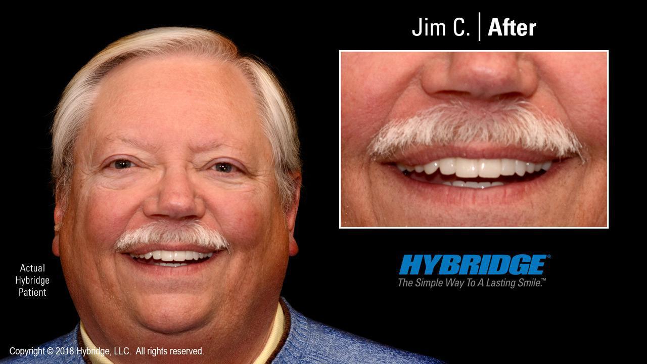 Jim C. After