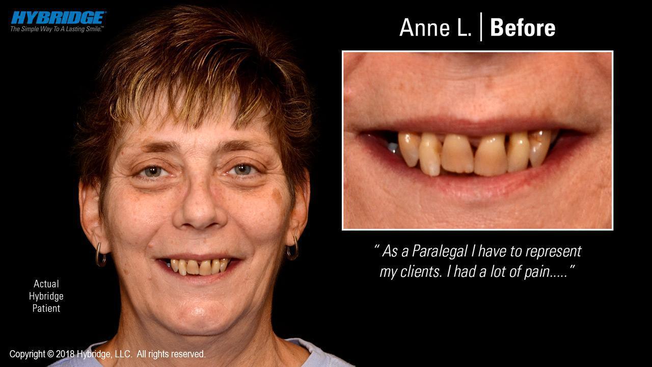Anne L. Before