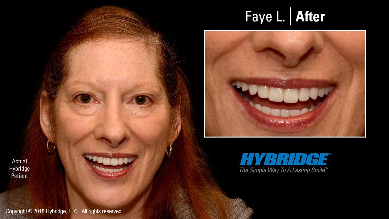 Faye L. After