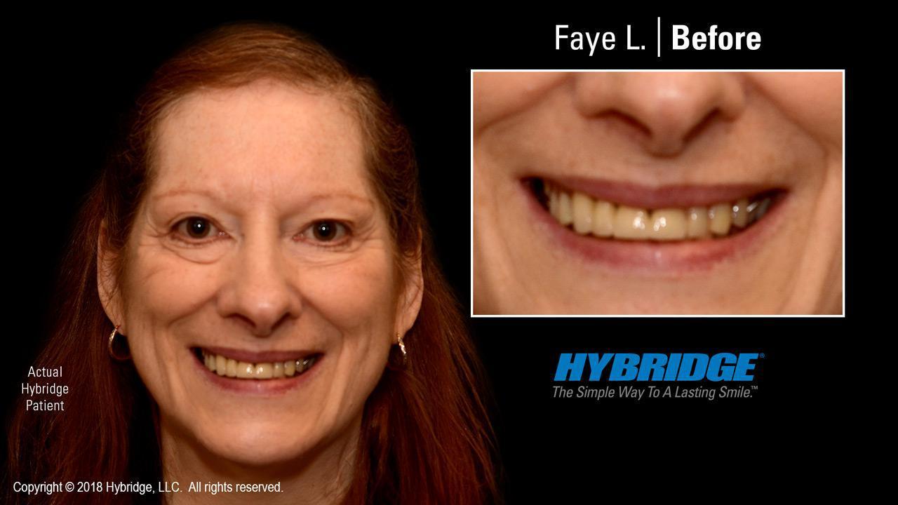 Faye L. Before