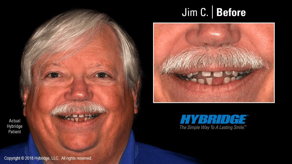 Jim C. Before