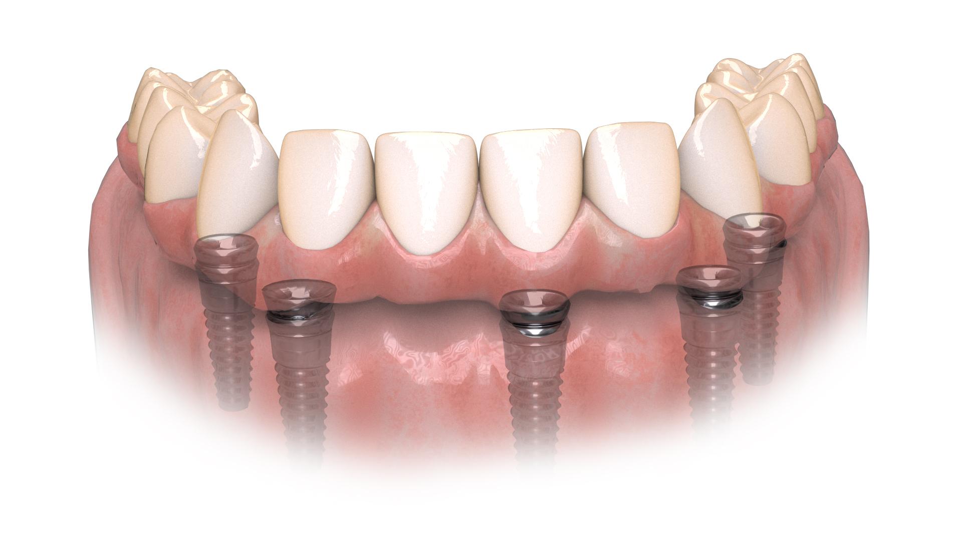 Hybridge Teeth Lower
