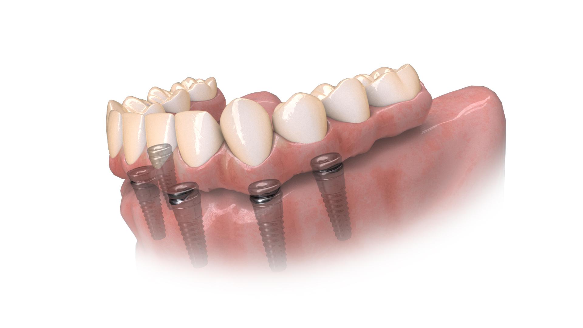 Hybridge Teeth Side