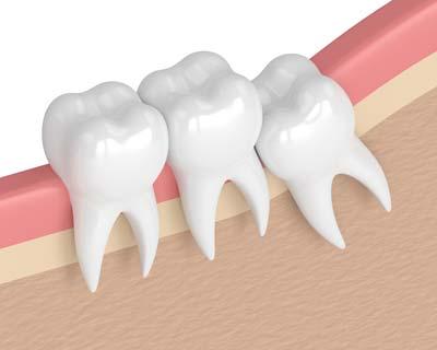Teeth Extraction Diagram